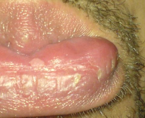 Kribbeln An Der Lippe