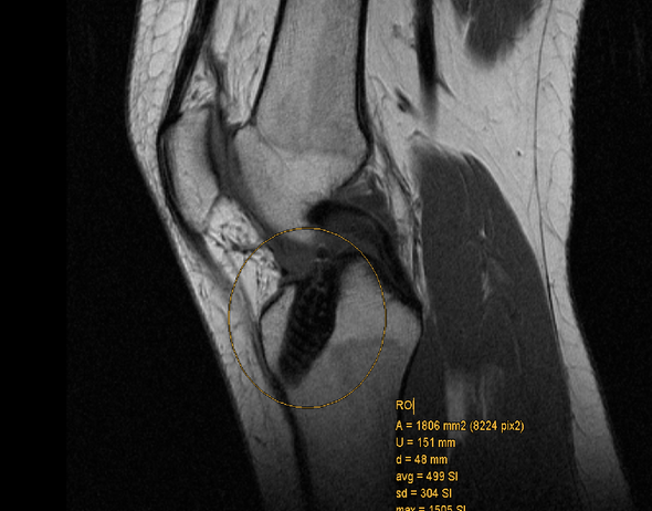 Der schwarze Fleck - (Arzt, Knie, MRT)