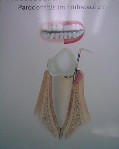 - (Medizin, Zähne, Zahnarzt)
