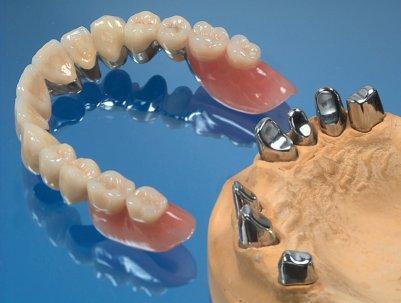 - (Zahnarzt, Zahnmedizin, Zahnersatz)