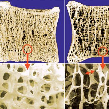 links erhöhte Knochendichte, auf dem rechten Bild vermindert - (Medizin, Fitness, Training)