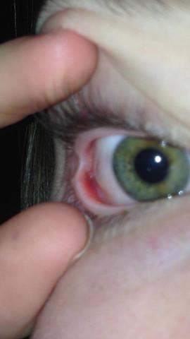 Mein Auge ist weich und wellt sich, was tun? (Krankheit
