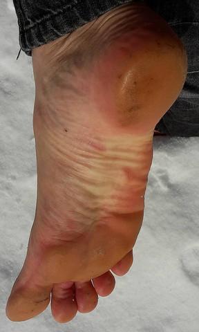 mein fuß während einer schneewanderung - (Gesundheit, Arbeit, Menschen)