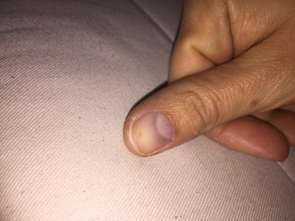 - (Fingernägel, Hautkrebs)