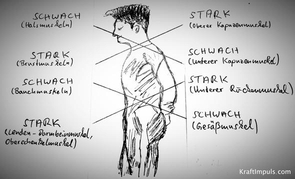 Kreuz Syndrom Theorie - (Gesundheit, Körper, Schmerzen)