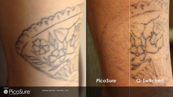 Unterschied mit einem Picosure und einem Q-Switched nach 3 Behandlungen - (Beauty, Ratgeber, Tattoo)