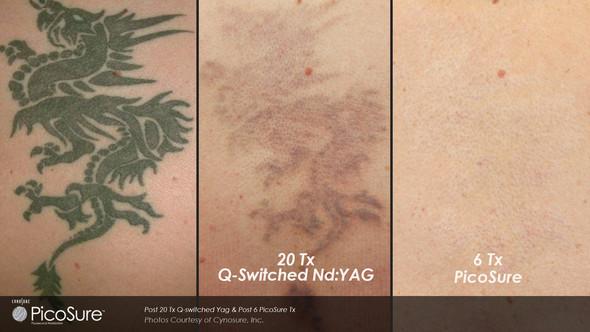 Unterschied mit einem Picosure (6x) und einem Q-Switched (20x) - (Beauty, Ratgeber, Tattoo)