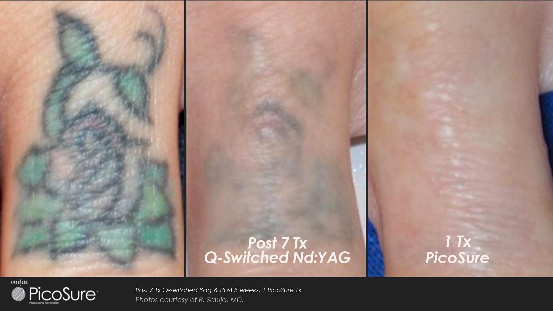 11 tattoos after laser removal biggie smalls tattoo. Black Bedroom Furniture Sets. Home Design Ideas