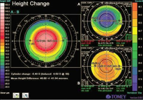 Zu kleine optische Zone nach Augenlaserbehandlung im Ausland - (Augen, Operation, Türkei)