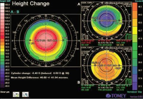 Zu kleine optische Zone nach Augenlaserbehandlung im Ausland - (Augen, Türkei, Operation)