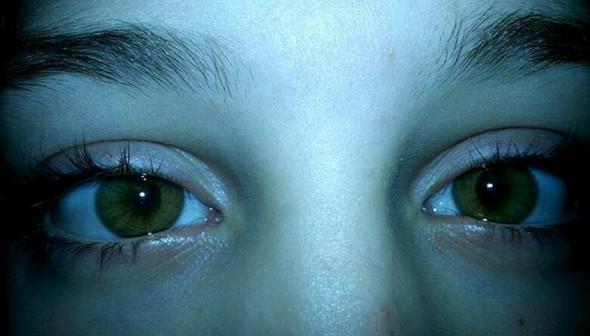 - (Augen, grün, Augenfarbe)