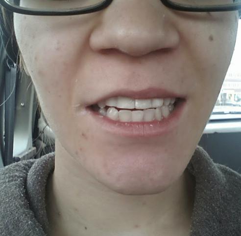 Kronen am ersten Tag - (Zähne, Aussehen, Zahnarzt)
