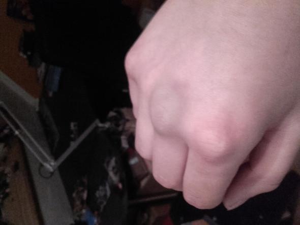 Ich weiß nicht ob man es sieht aber der Mittelfinger ist das dicker  - (Freizeit, Medizin, Arzt)