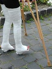 Kann man mit 2 gebrochenen Beinen auf Krücken laufen