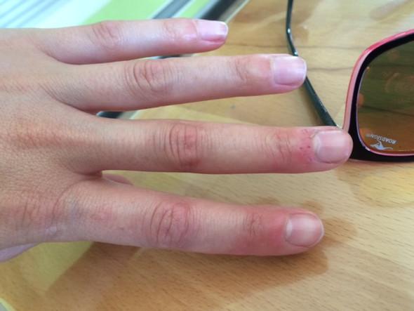 - (rot, Fingernägel, verdickt)