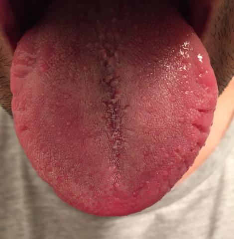 - (Gesundheit, Mund, Zunge)