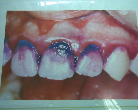 - (Medizin, Zähne, kalkmangel)