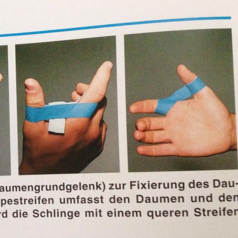 Tapen Daumengrundgelenk  - (Sport, Verletzung, Volleyball)