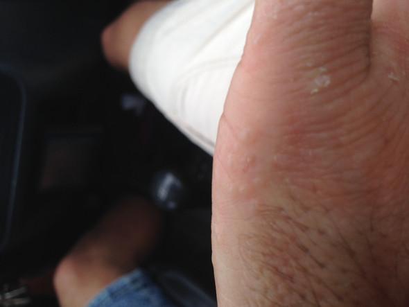 - (Hand, Hautkrankheit, blaeschen)