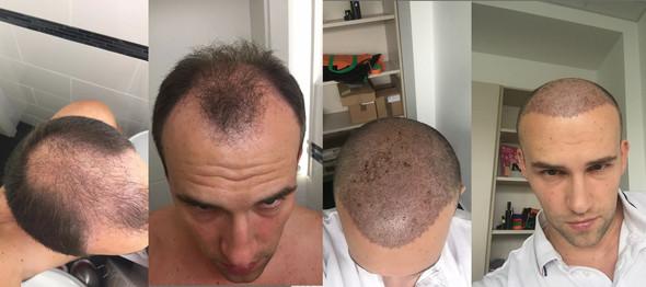 - (Haare, Hair, Transplantation)