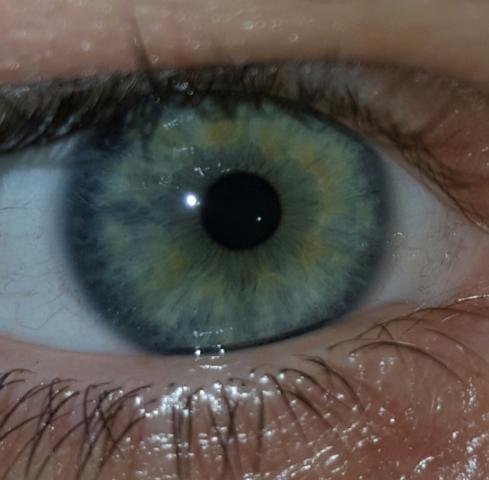 Das ist das Bild - (Augen, Augenfarbe)
