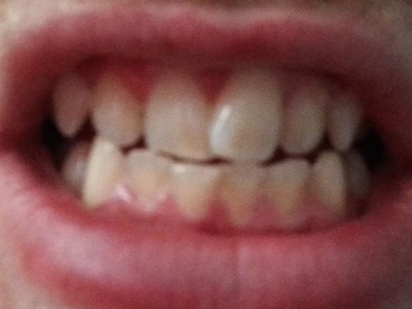 Zähne  - (Gesundheit, Zähne, harmonieschiene)