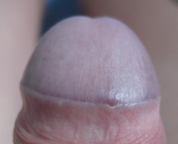 Vorhautverklebung - (Penis, Vorhaut, Eichel)