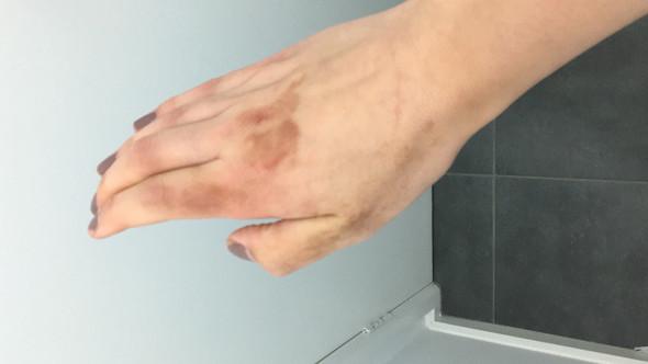 hilfe braune flecken auf der hand was tun arzt krankheit rat. Black Bedroom Furniture Sets. Home Design Ideas