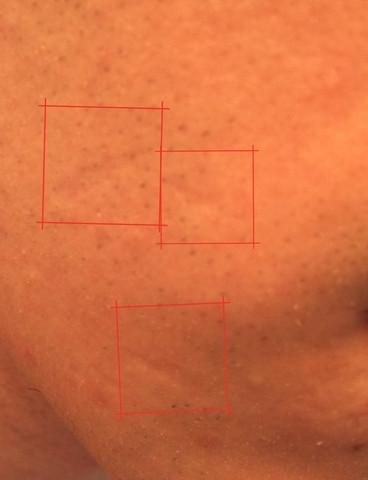 - (Haut, Gesicht, Streifen)