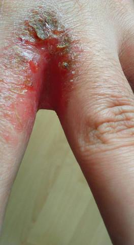 - (Haut, Finger, Ausschlag)
