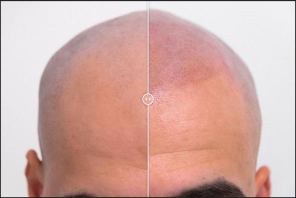 Haarpigmentierung bei Glatze - (Haare, Frisur, rasieren)