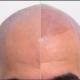 Haarpigmentierung bei Glatze