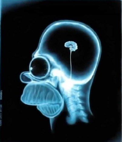 Gehirnschwund - (Psychologie, Leben, Religion)