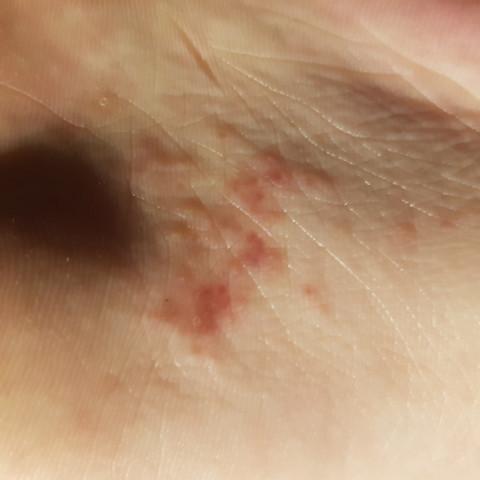 Bild - (Haut, Füße, rote flecken)