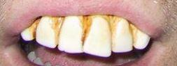 - (Gesundheit, Zähne)