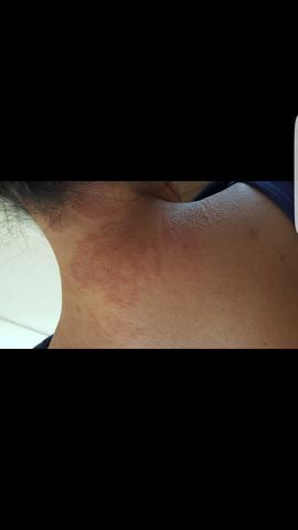 Hautausschlag - (Hautausschlag, Hauterkrankung)