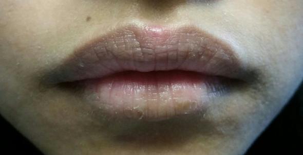 Pickel oder Herpes - (Pickel, Lippe, Herpes)