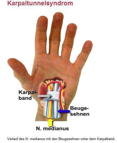 woran erkenne ich das mein handgelenk gebrochen ist ...