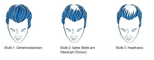 Der Verlauf des Haarausfalls beim Mann - (Haarausfall, geheimratsecken, Kopflochter)