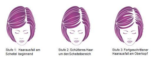 "Stadien des Haarausfalls bei der Frau (""Ludwig-Skala"") - (Haarausfall, geheimratsecken, Kopflochter)"