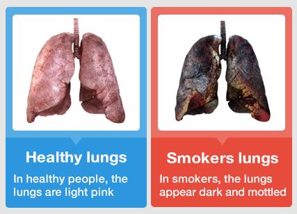 - (rauchen, Mund, Lunge)