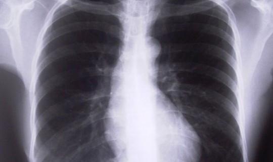 - (Lunge, röntgen)