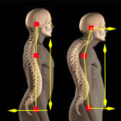 Normaler Rücken - Rundrücken mit gestauchter Halswirbelsäule - (Schmerzen, Kopfschmerzen, Migräne)