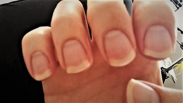 Meine Fingernägel 1 - (Gesundheit und Medizin, Nägel, Finger)