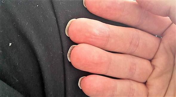 Meine Fingernägel 2 - (Gesundheit und Medizin, Nägel, Finger)