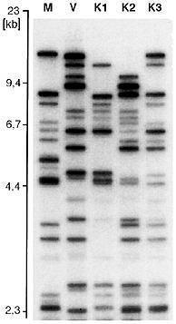 Beispiel - (Genetik, Vaterschaftstest)