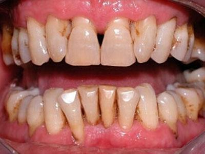 Zähne mit freiliegenden Zahnhals - (Zähne, Backpulver)