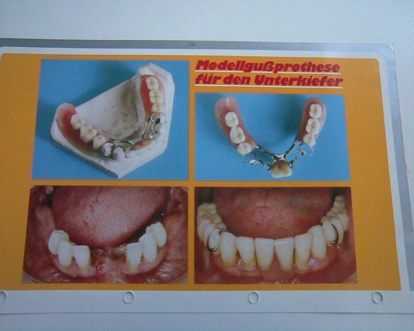Modellgussprothese - (Medizin, Zahnarzt, Zahnschmerzen)