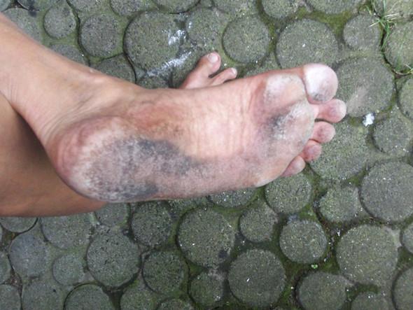 So sah meine Fußsohle nach 10km Wandern aus - (nackt, barfuß)