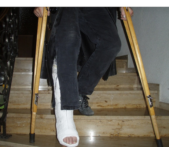 Ohne krücken belastung laufen 24 Treppen